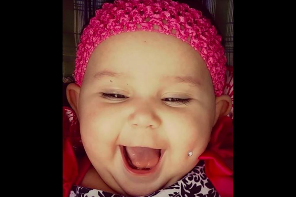 Mama przekuła policzek 6-miesięcznej córeczce!