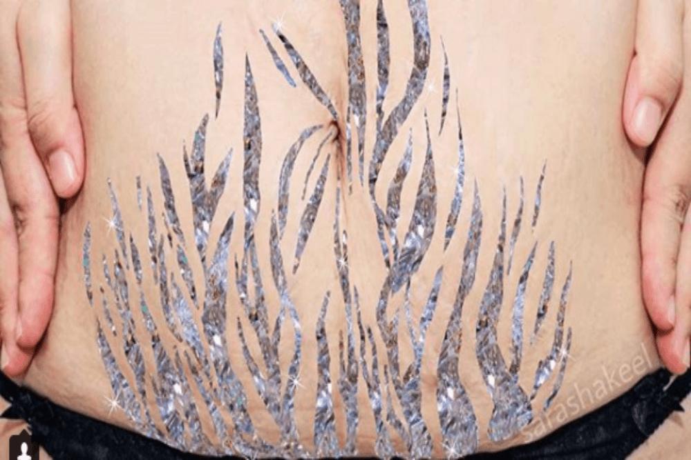 Ta kobieta przemienia defekty ciała w sztukę! Jak?