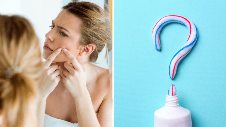 Czy pasta do zębów naprawdę pomaga pozbyć się pryszczy?