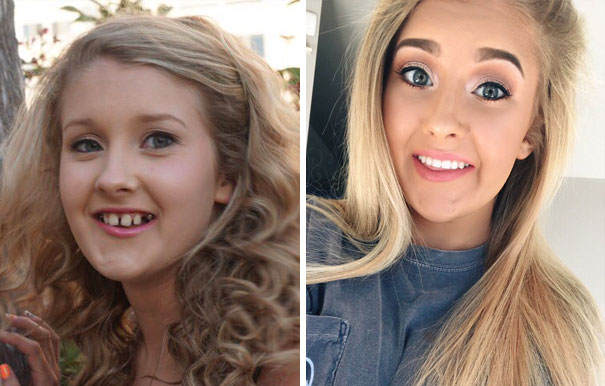 Randki z krzywymi zębami