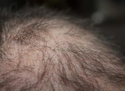 Sposób na łysienie u kobiet- czegoś takiego jeszcze nie widziałam!