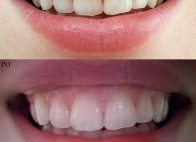 Moje efekty po wybielaniu zębów paskami Bright White - Malinowe C.