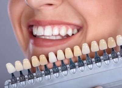 Wybielanie zębów u stomatologa - spełnij marzenie o białym uśmiechu!