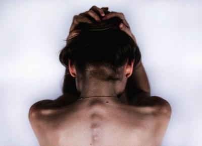 Migrena z aurą - Sprawdź jak ją ujarzmiłam -