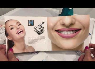 Założyłam aparat ortodontyczny (oczekiwania vs rzeczywistość) - koszt, wygląd i inne takie
