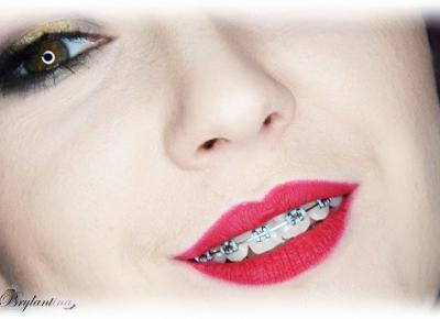 Blog Brylantina: Aparat ortodontyczny #1 - jak to się zaczęło?