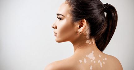 Vitiligo Social Isolation and Natural Treatment