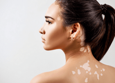 Vitiligo Social Isolation and Natural Treatment