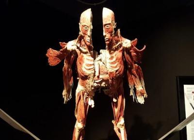Najchętniej odwiedzana wystawa świata. Dlaczego ludzie chcą oglądać Body Worlds? ~ Pozycje Obowiązkowe