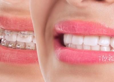 Aparat ortodontyczny przed i po – jakie są efekty jego noszenia? - Polki.pl