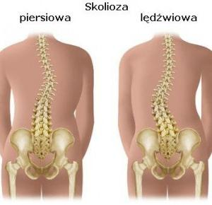 life with scoliosis: O skoliozie