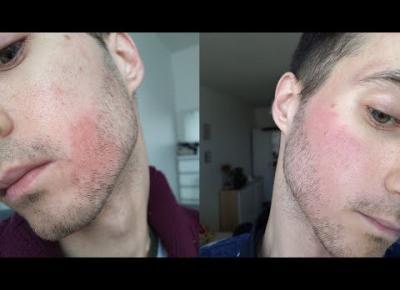 Vlog co się stało z moją skórą?!