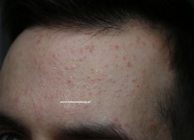 Trądzik posterydowy leczenie Epiduo Forte i efekty