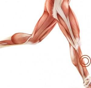 TRI inspirations: Shin splints - Ból w przednio-przyśrodkowej części łydki