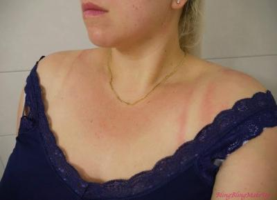 Bling Bling MakeUp: Domowe sposoby na oparzenia s?oneczne