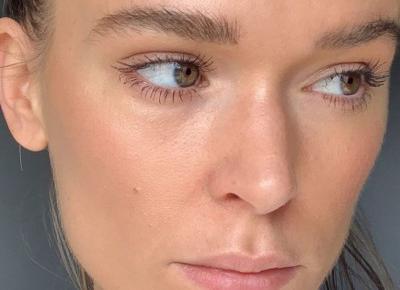 Kaszka na twarzy – skąd się bierze? Sprawdź, jak zapobiegać powstawaniu kaszki na twarzy i jak się jej pozbyć.