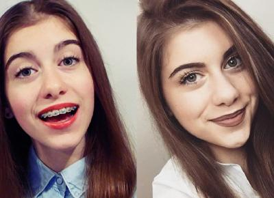 METAMORFOZY YOUTUBEREK – Twins Style