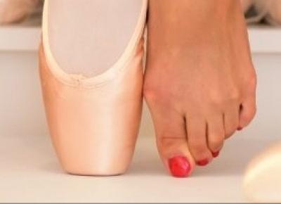 Stopy tancerek- prawda i fałsz