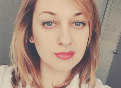 o tym jak powiększyłam usta kwasem hialuronowym | VEXGIRL - beauty & lifestyle blog