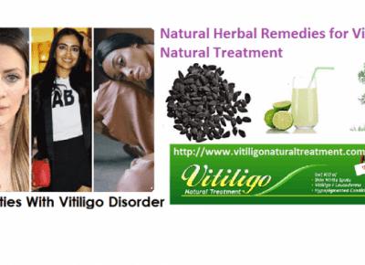 Vitiligo Natural Treatment