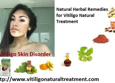 Vitiligo Natural