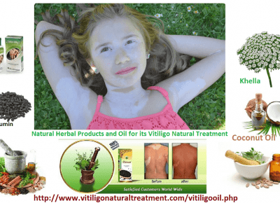 Skin Disorder Vitiligo and Natural Herbal Products and Oil for its Treatment