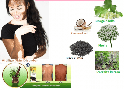 Causes, Symptoms and Natural Herbal Ways to Get Rid of Vitiligo